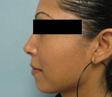 Rinoplastie,Rinoplastia,Operatie de rinoplastie